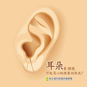 耳朵有褶痕可能是心肌梗塞的徵兆?